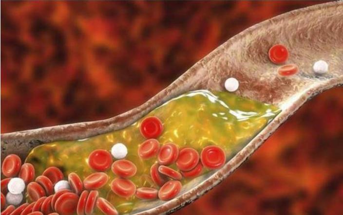 元气对血液循环的影响太大了,补充元气才是治疗血液循环障碍的根本